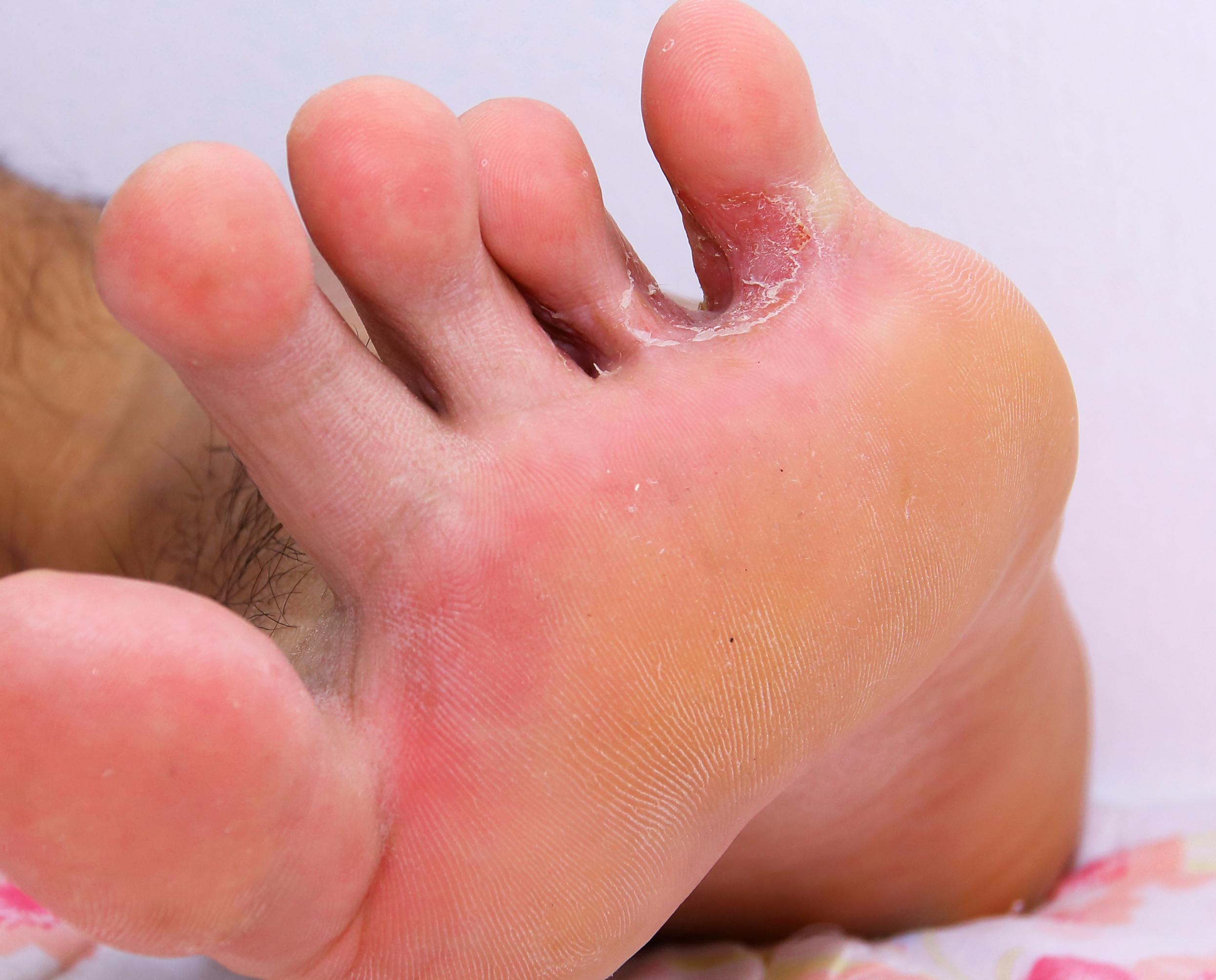 a lábujj nedves lesz mint kezelni szemcseppek a parazitáktól az emberekig