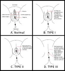 a genitális szemölcsök rádiófrekvenciás koagulációja Ascaris kezelés szoptatáshoz