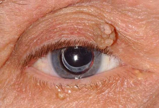 papilloma vírus szeme