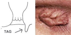 humán papillomavírus felvétel
