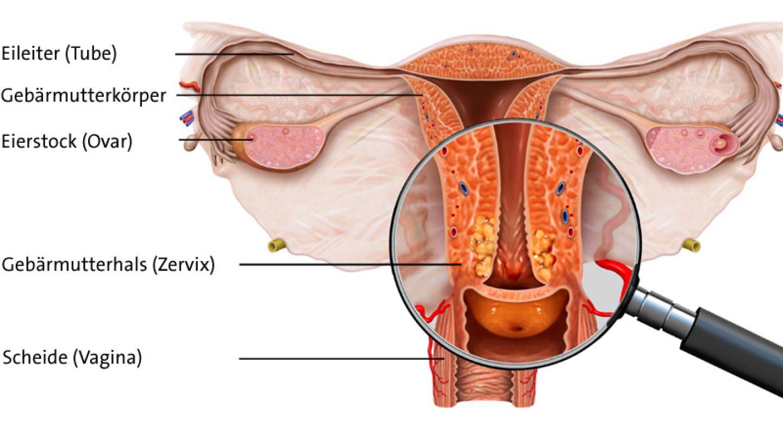 hpv gebarmutterhals op a helminthiasis kezelése 1 év alatti gyermekeknél