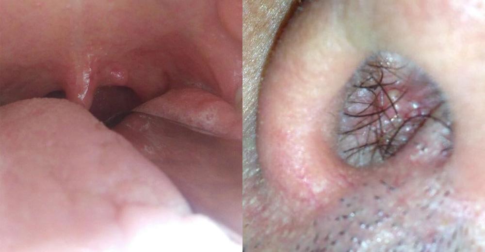 papilloma naso