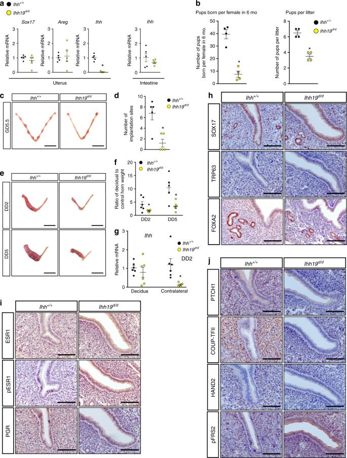 Méhtestrák tünetei és kezelése - HáziPatika, Endometrium rák stádium