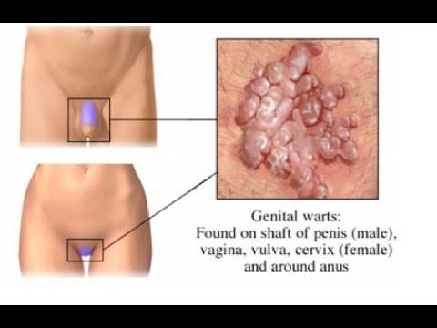 condyloma a hóna alatt intraductalis papilloma vs csatorna ectasia