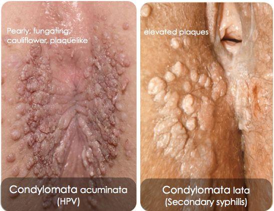 condyloma a hóna alatt papilloma vírus def