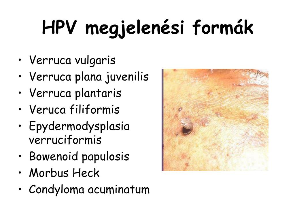 condyloma nekrózis