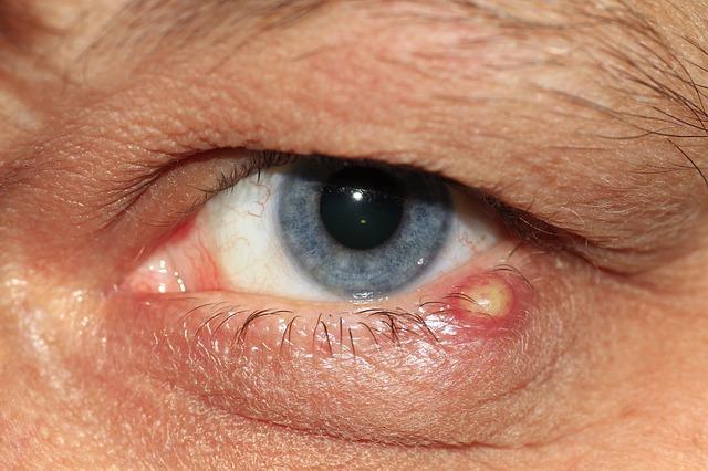 Szemölcsök megjelenhetnek születés után, Condyloma acuminatum- Nemi szemölcs - Dr. Harmos Ferenc