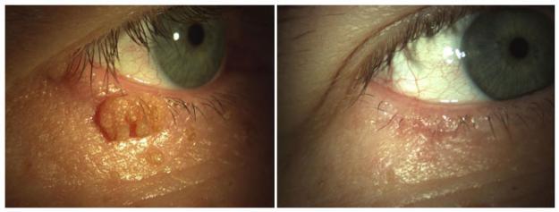 Kisebb szemészeti műtétek