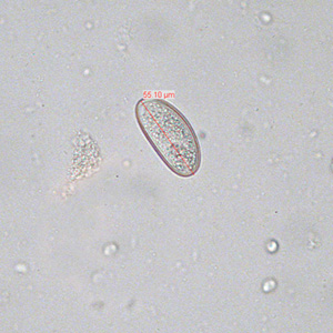 Enterobiosis módszer