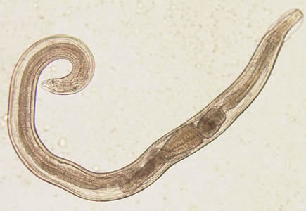 enterobius vermicularis nih tampont