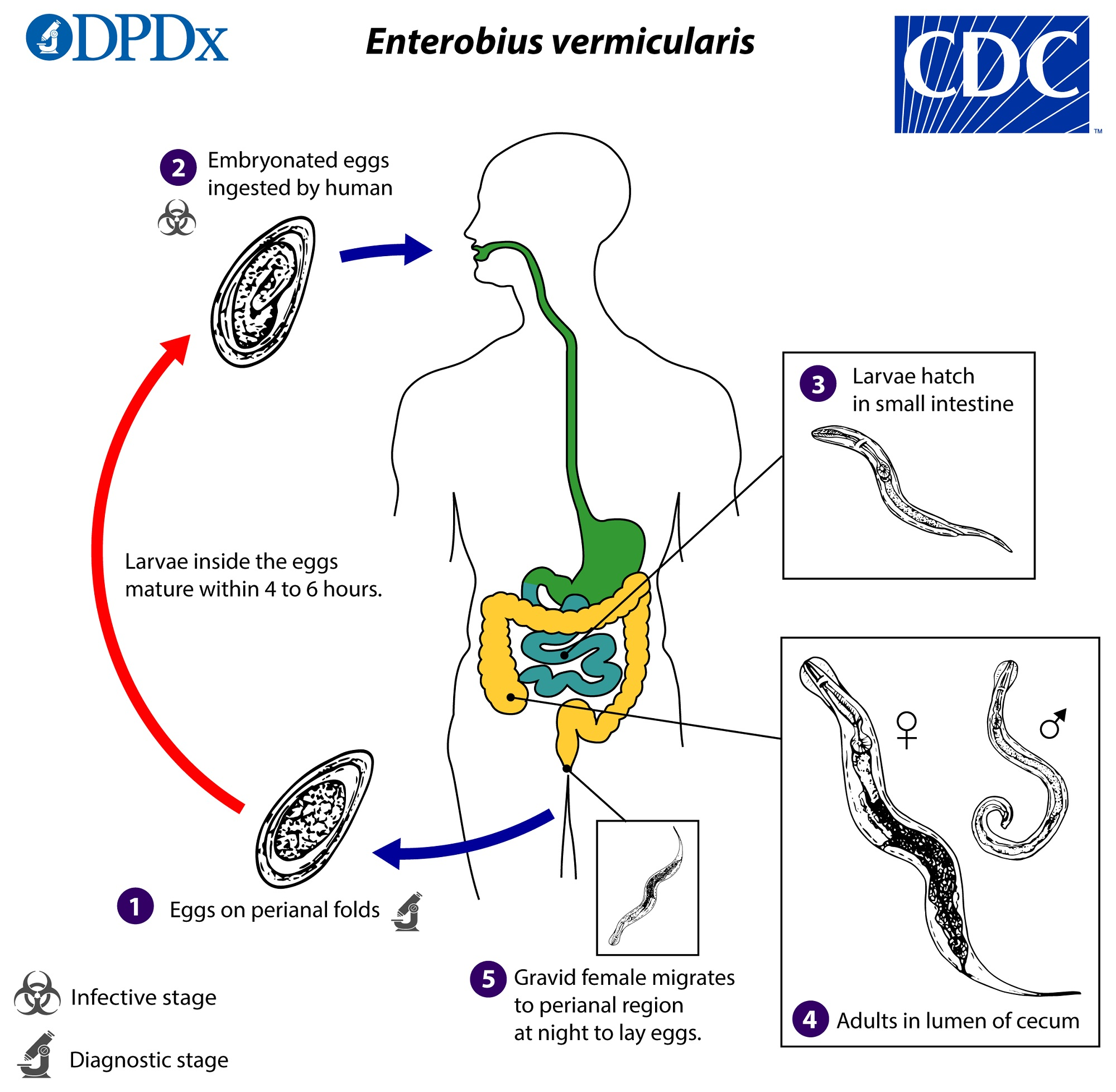 Pinworms az emberi székletben. Típusú férgek és fogászati kezelés