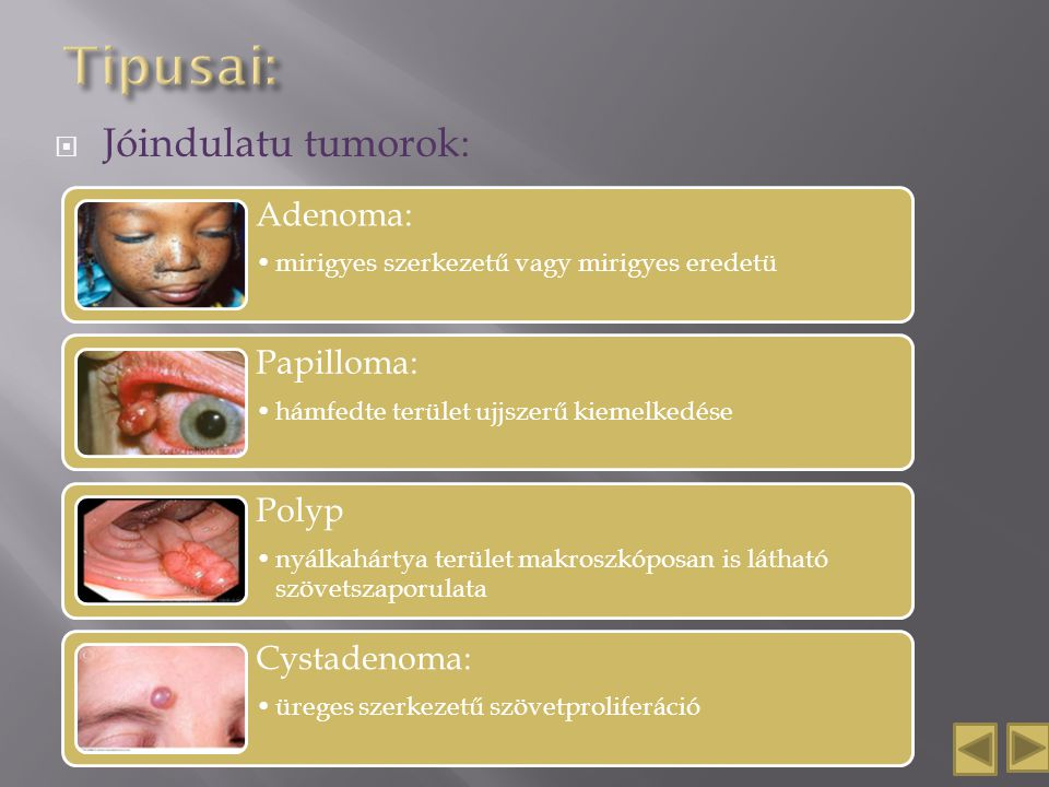 HPV: újonnan felismert kockázati tényező a fej-nyaki rákok kialakulásában   kuruczporta.hu