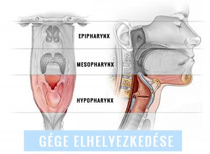 A wormexet étkezés előtt vagy után adják be gége tracheobronchialis papillomatosis