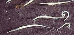 Pinworms tünetek, kezelések és gyógyszerek - Hírek - Hasi fájdalom pinworms