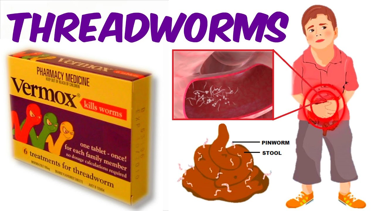 pinworm kenőcs gyerekeknek