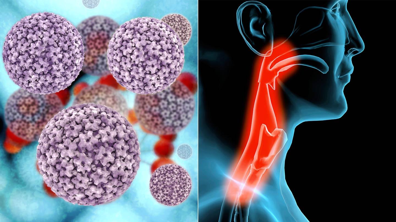 hasi rák tünetei ami a papilloma vírus és a kezelés
