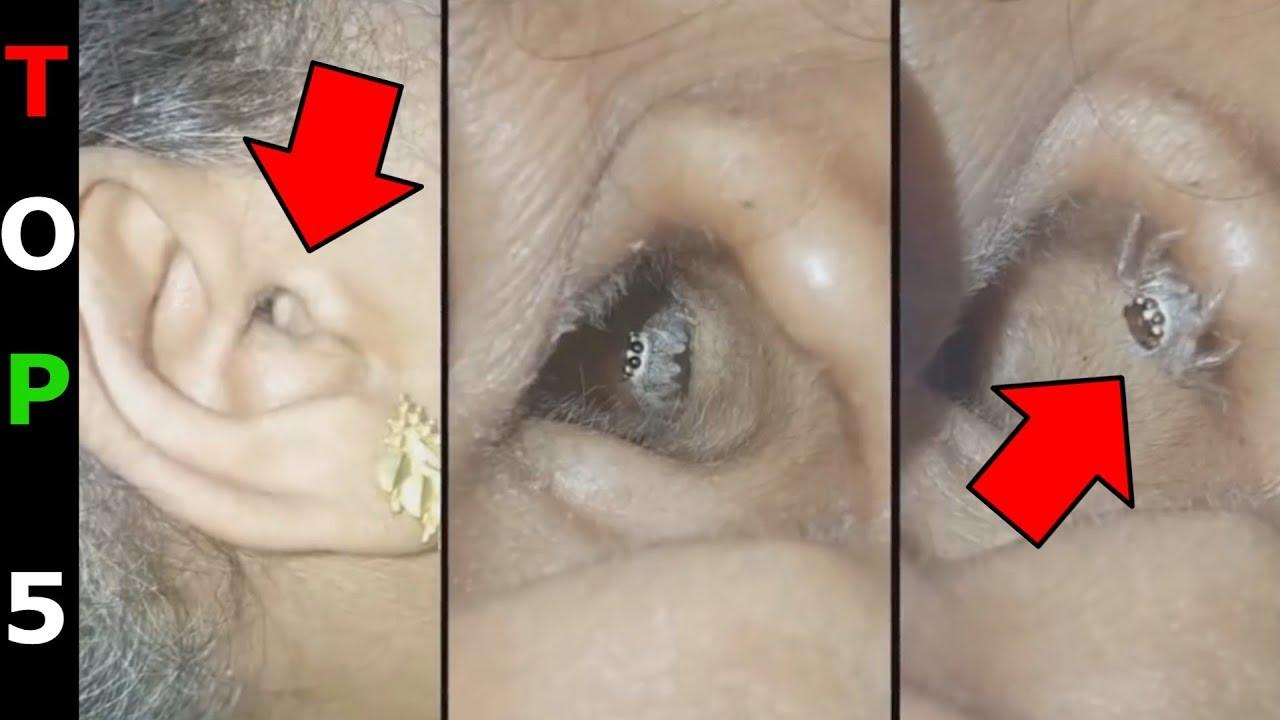 milyen parazitak lehetnek az emberi testben)