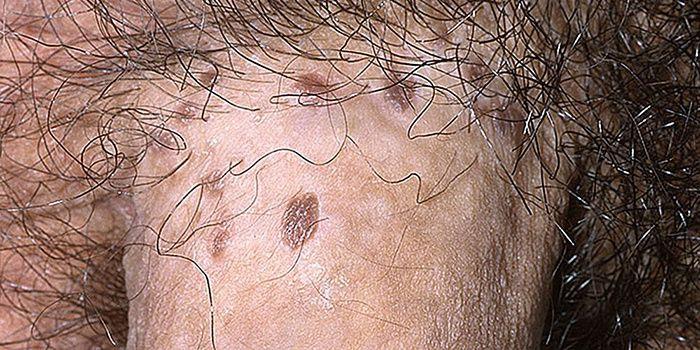 papillómák a perineumban hogyan kell kezelni a lamblia férgeket