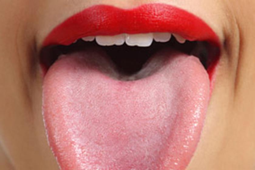 papilloma a nyelv okozta
