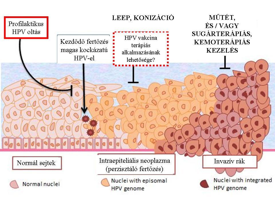 féreg beöntés kezelése paraziták elleni gyógyszerek ivermektin