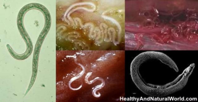 a rovarok emberi paraziták tiszta vastagbél méregtelenítő és tiszta ázsiai garcinia