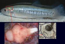 papillómák vagy genitális szemölcsök kezelése