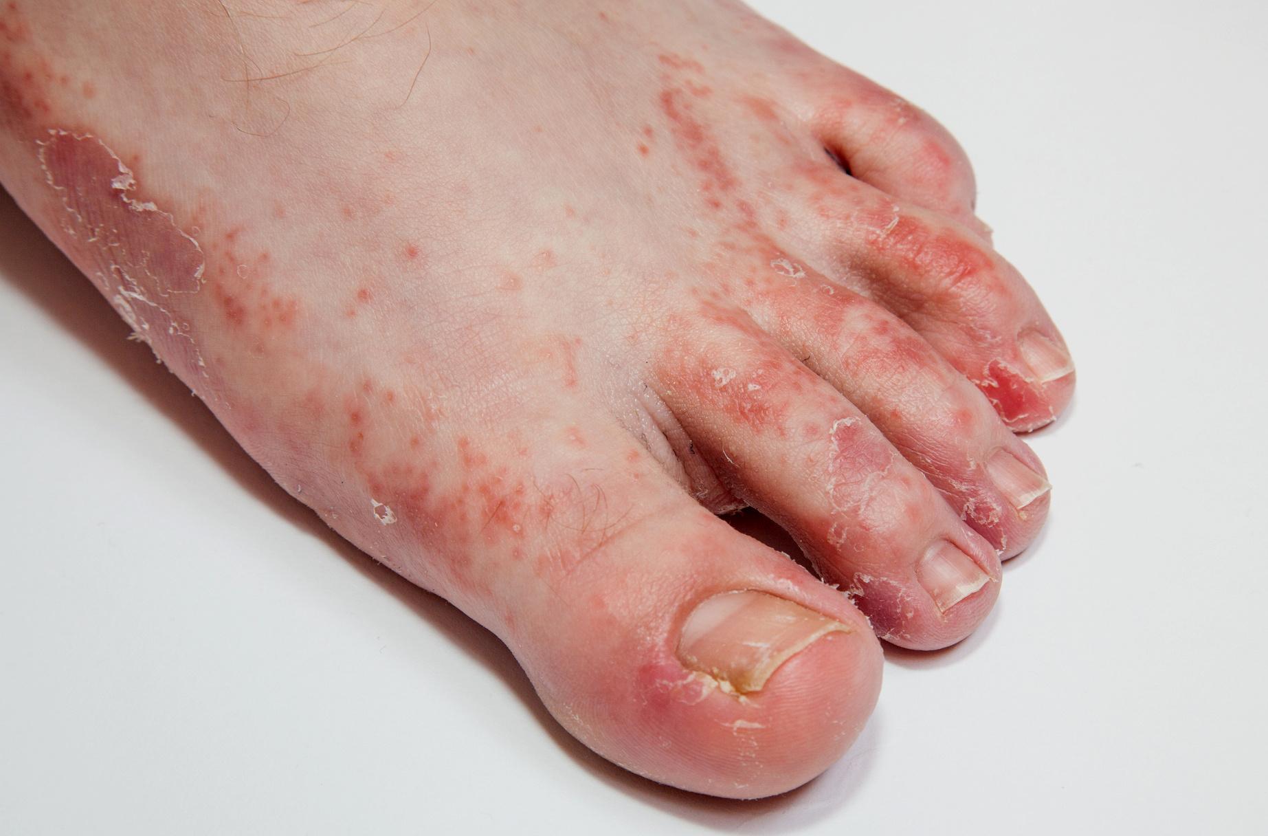 pattanások a lábujjak kezelése között az enterobiosis következményei