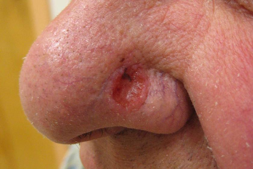 szarkóma rák kezelés mellékhatásai