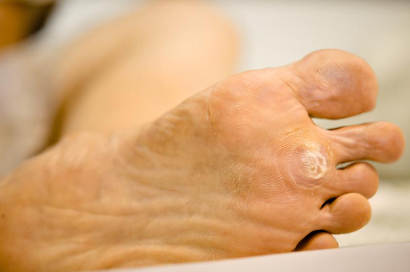 szemölcsök mindkét kezén todicamp parazita kezelés