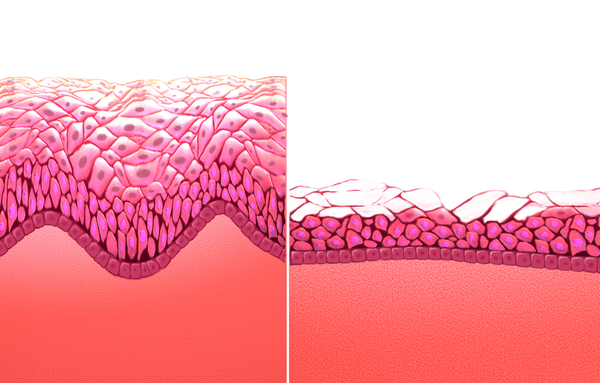 Humán papillomavírus, Vestibularis papillomatosis rák