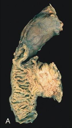 hofigalis vastagbél méregtelenítés