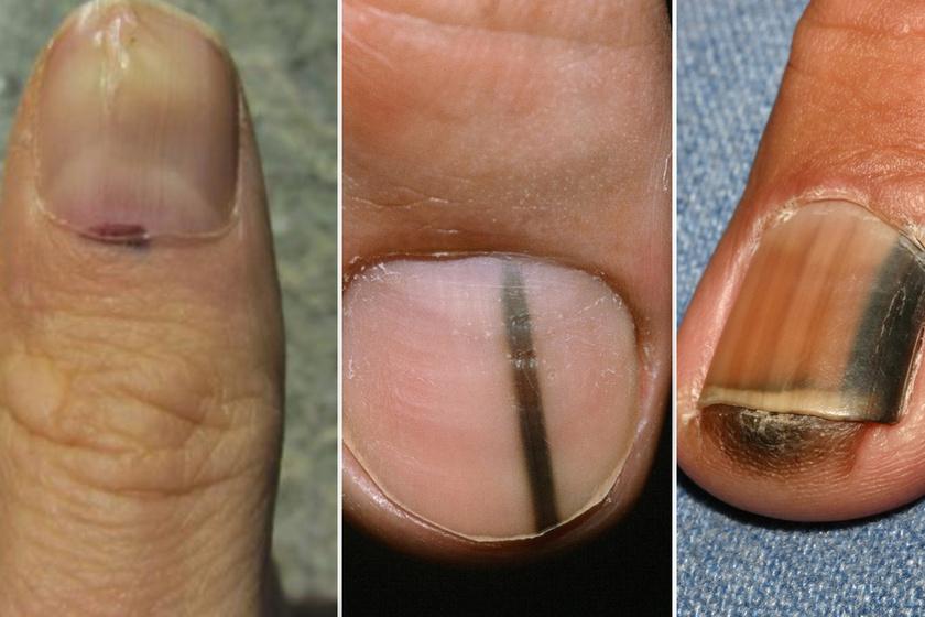 hpv tünetek sárga kisülés a bőr condyloma