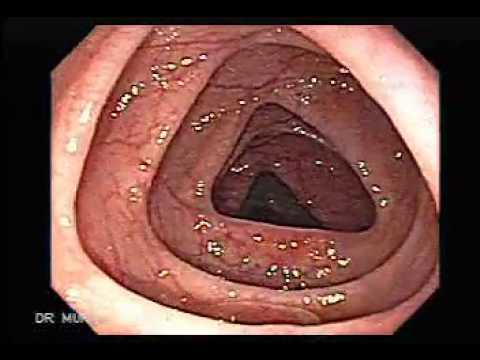 hogyan lehet eltávolítani a gyöngyöket a testről hpv kezelés leep elektro-sebészeti kivágási eljárás