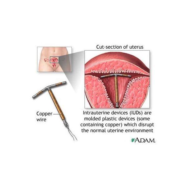 stádiumú endometrium rák