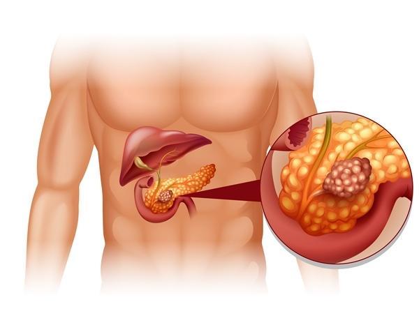 méhnyálkahártya-rák ct-vizsgálatkor