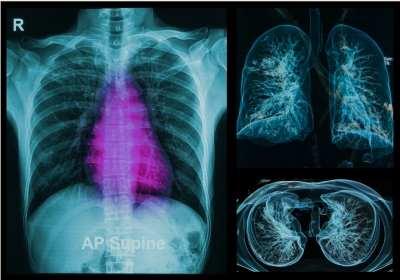 tüdőrák gyógyítható