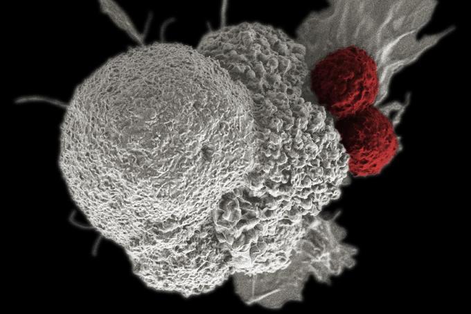 hasi rákos időszak A gyomorrák utolsó fázisának tünetei