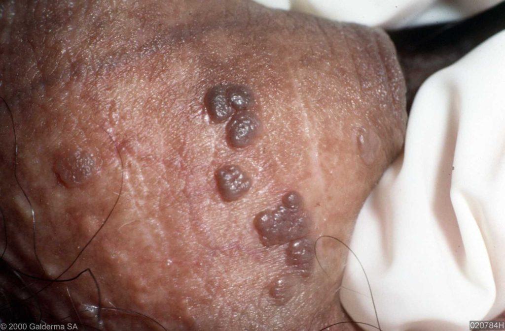 papillomavírus mannen