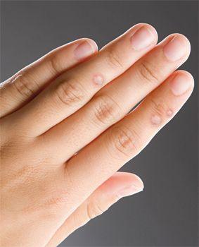 végbélrák az MR-n szemölcsök a kezén okok és kezelések