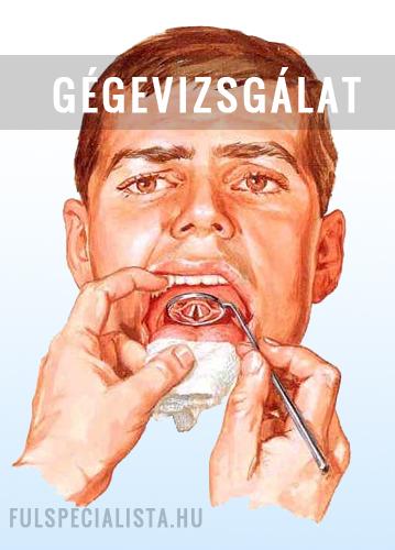 hpv rák genitális szemölcsök a condyloma óvszer útján terjed